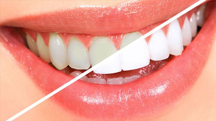 Dişlerdeki renk ve şekil bozukluğu nasıl giderilir?
