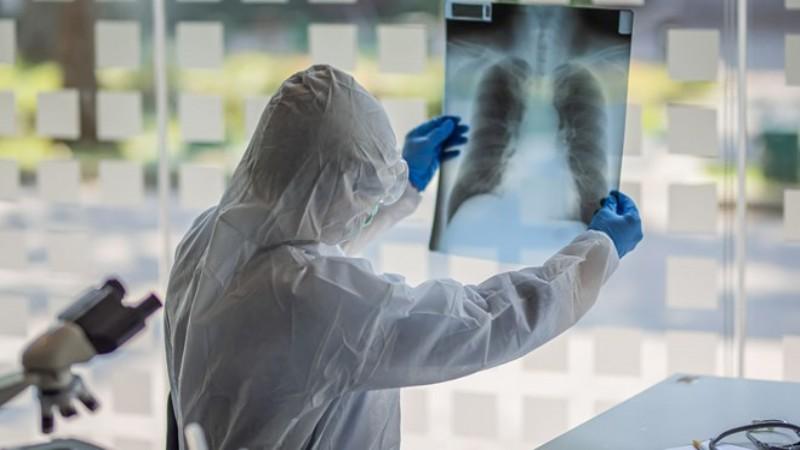 Araştırma: Koronavirüste ikinci enfeksiyon daha ağır