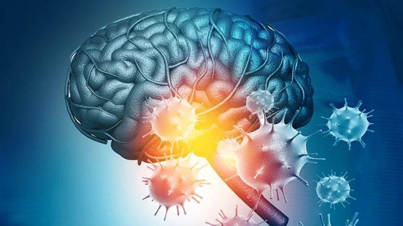 Koronavirüsün Beyni Nasıl 'Öldürdüğü' Ortaya Çıktı